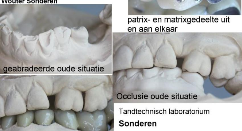 Mandible rehabilitation by a divergent bridge