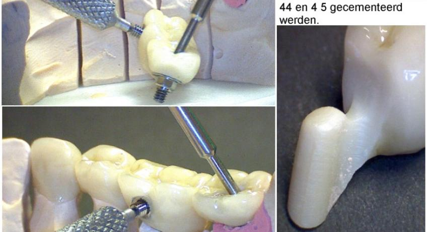 Stress breaker between implant and own pillar