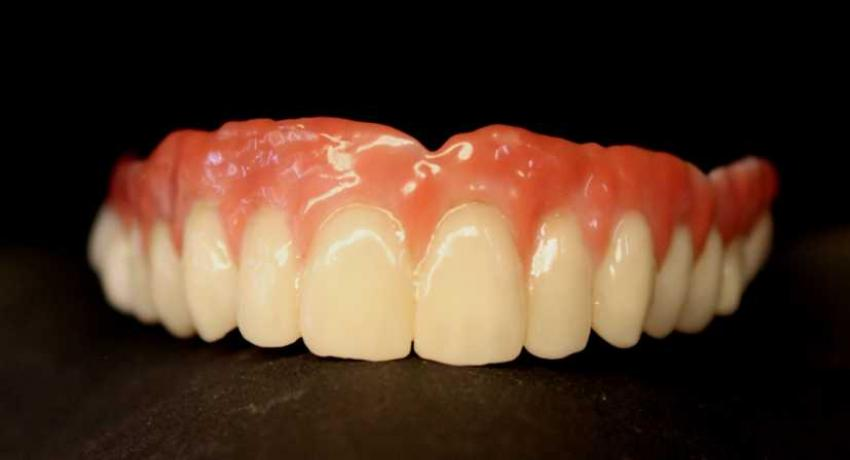 Implant supported zirconium denture